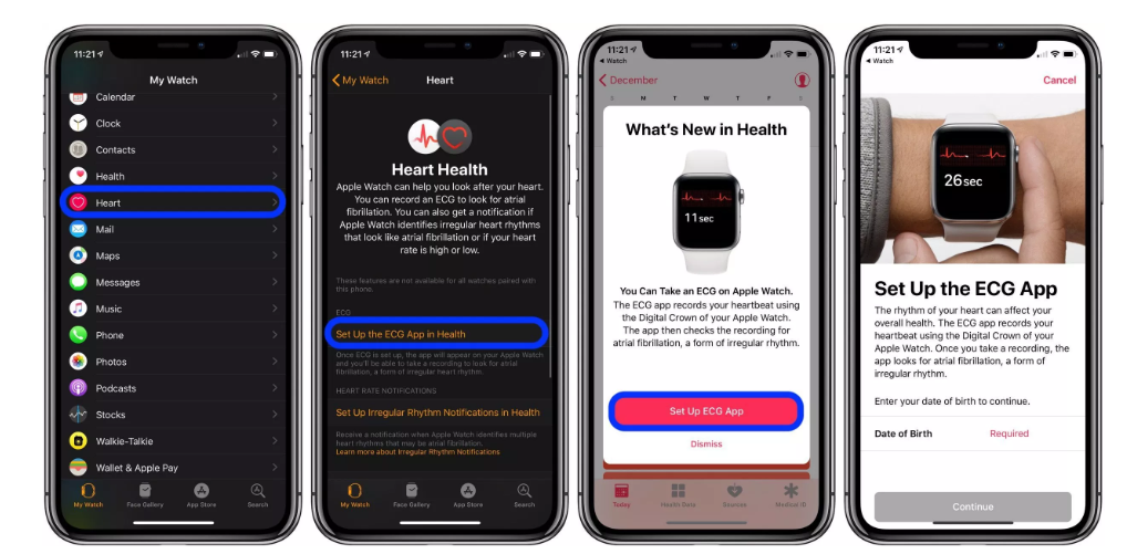How to Take an ECG (electrocardiogram) on Apple Watch
